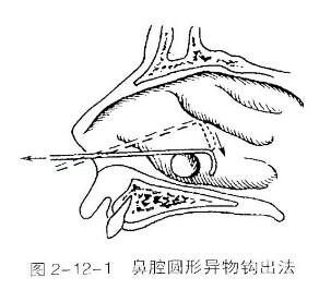 宝宝鼻腔有异物怎么办
